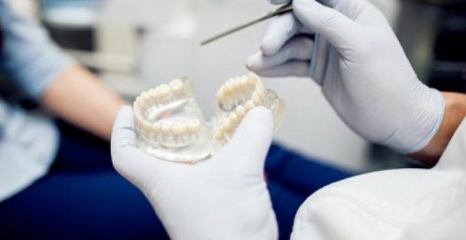 cuanto cuesta una corona dental