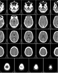 ¿Cuánto Cuesta Una Tomografía? Vale La Pena Conocer Este Precio