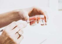 Cuál es el precio de la ortodoncia invisible